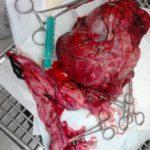 Novotvar vaječníků